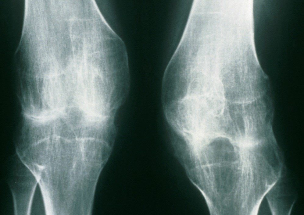 Challenges in Transitioning from Pediatric to Adult Rheumatology Care