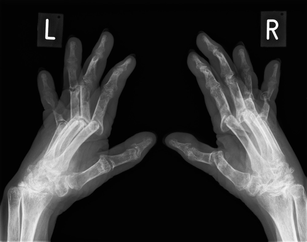Tender Joint Count May Not Reflect Inflammation Activity in Rheumatoid Arthritis
