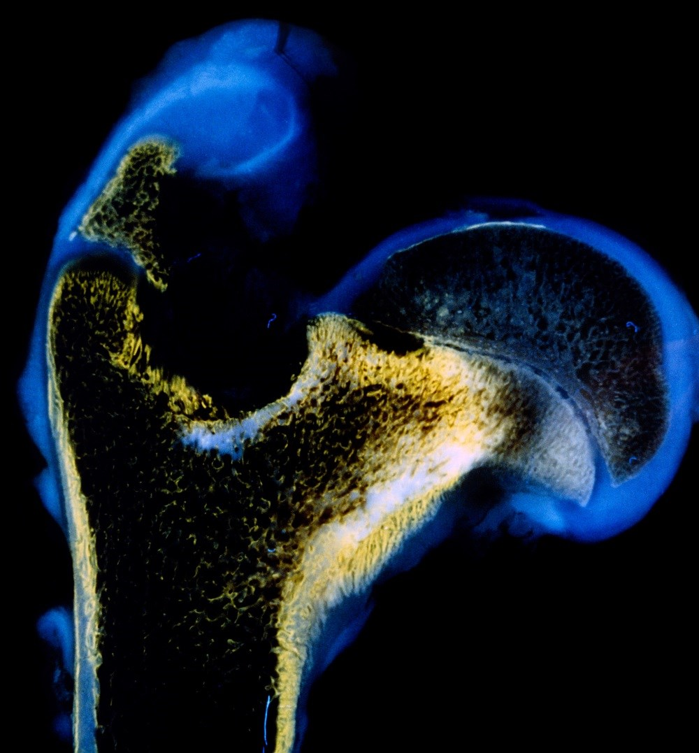 Poorly Controlled Rheumatoid Arthritis Increases T2D Risk