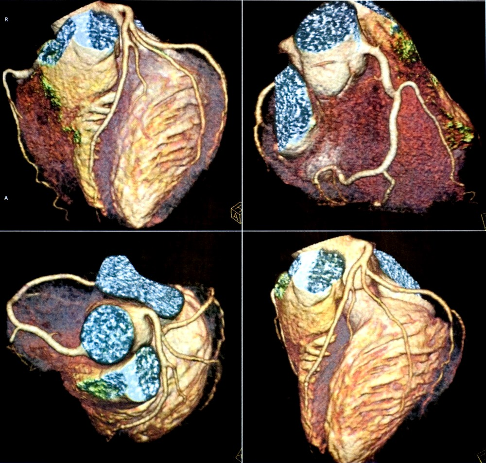 RA is associated with an increased risk for cardiovascular disease and mortality.