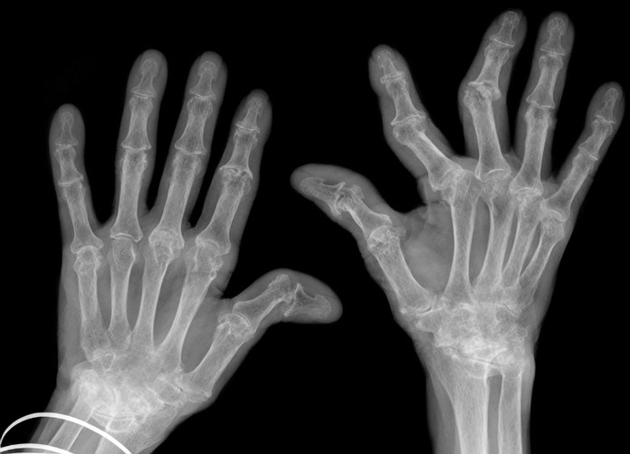 Hand Osteoarthritis and Type 1 Diabetes: Is There A Connection?