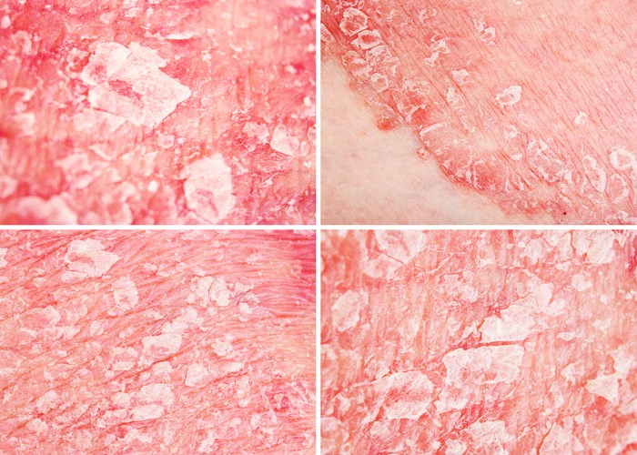Psoriasis Among Skin Diseases With Largest Impact on Well-Being