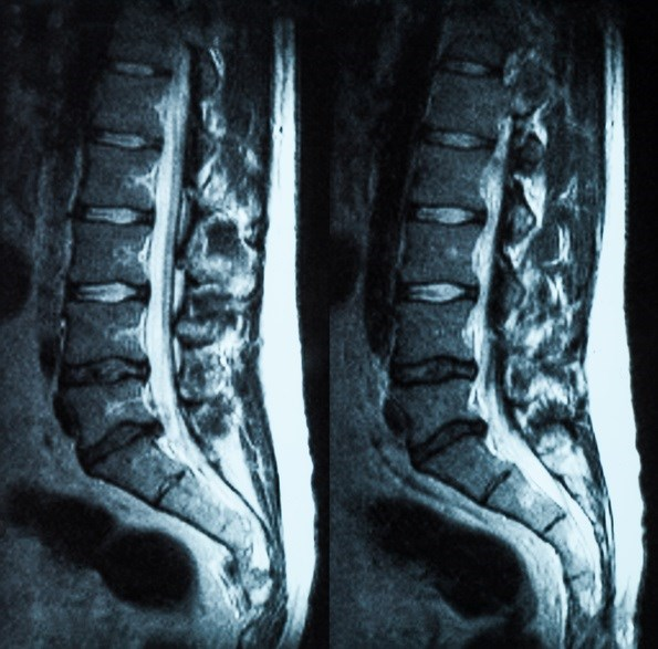 Tofacitinib Reduces MRI Inflammation, May Improve Outcomes in Ankylosing Spondylitis
