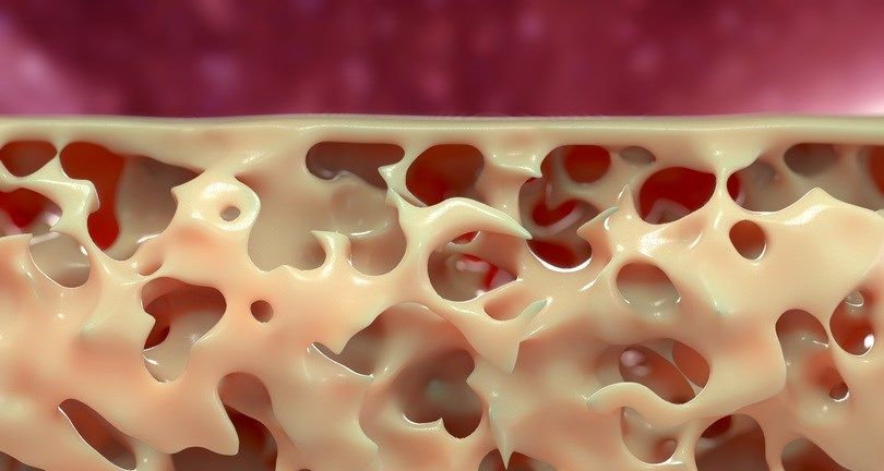 MicroRNAs Linked to Increased Cortical Bone Porosity in Postmenopausal Women With History of Fracture