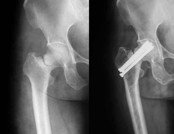 Alendronate prescribed to patients treated with prednisolone was associated with reduced risk for hip fracture.