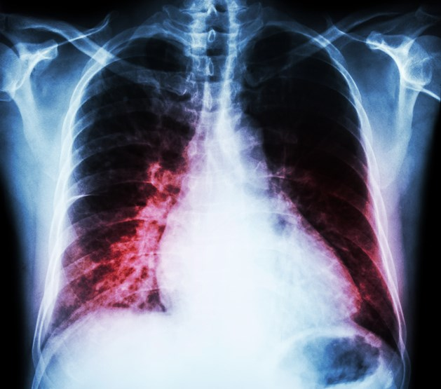 Treatment with levothyroxine in patients with heart failure has not been studied adequately, and controversy about treatment substitution has developed as a result.