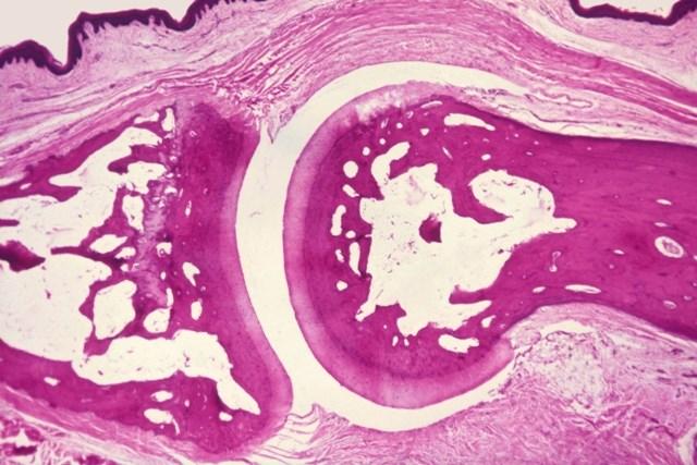 Predicting Lowest Effective Dose For Biologics in Rheumatoid Arthritis Treatment