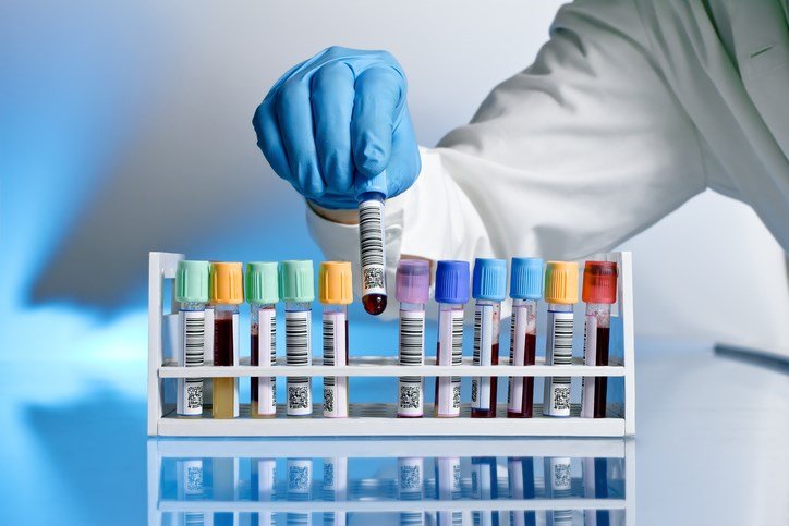 Researchers evaluated several known biomarkers related to the signaling pathways targeted by current treatments for PAH.