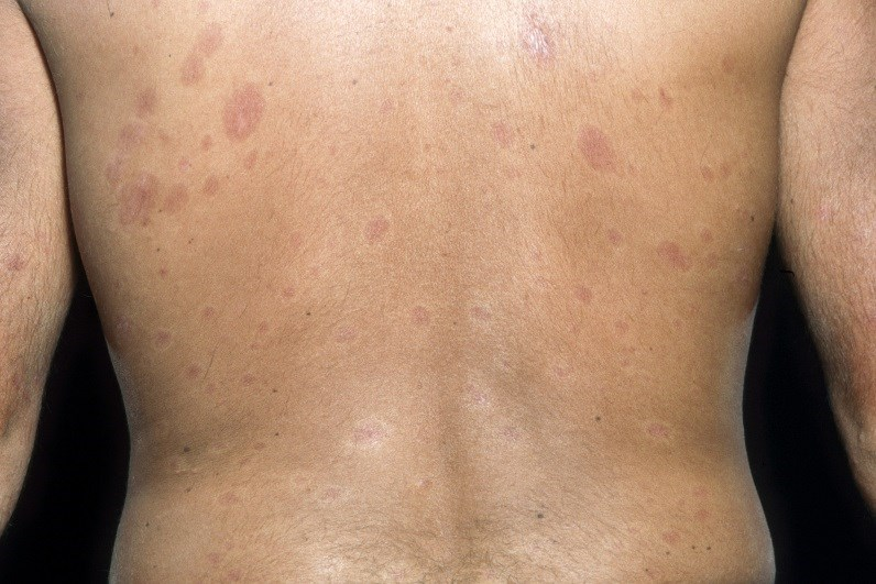 Predicting Skin Score Changes in Early Diffuse Systemic Sclerosis