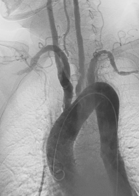 Better risk scores for predicting cardiovascular events in Takayasu's arteritis would be beneficial.