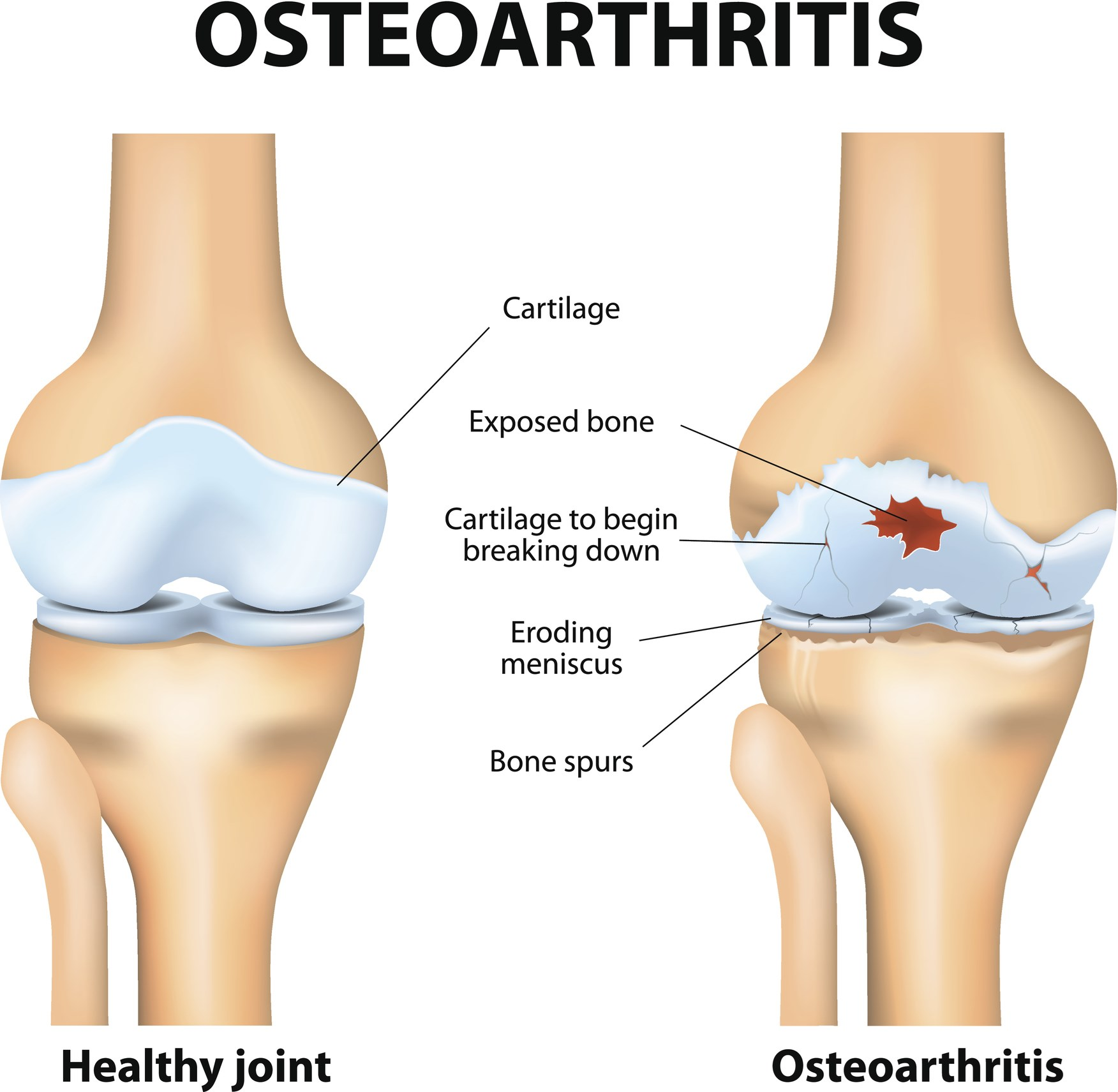 Lower Cartilage Degeneration With Weight Loss in OA