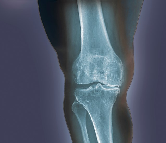 """Radiographic and clinical outcomes suggested SM04690 has potential as a [disease-modifying osteoarthritis drug] for knee [osteoarthritis] treatment."""