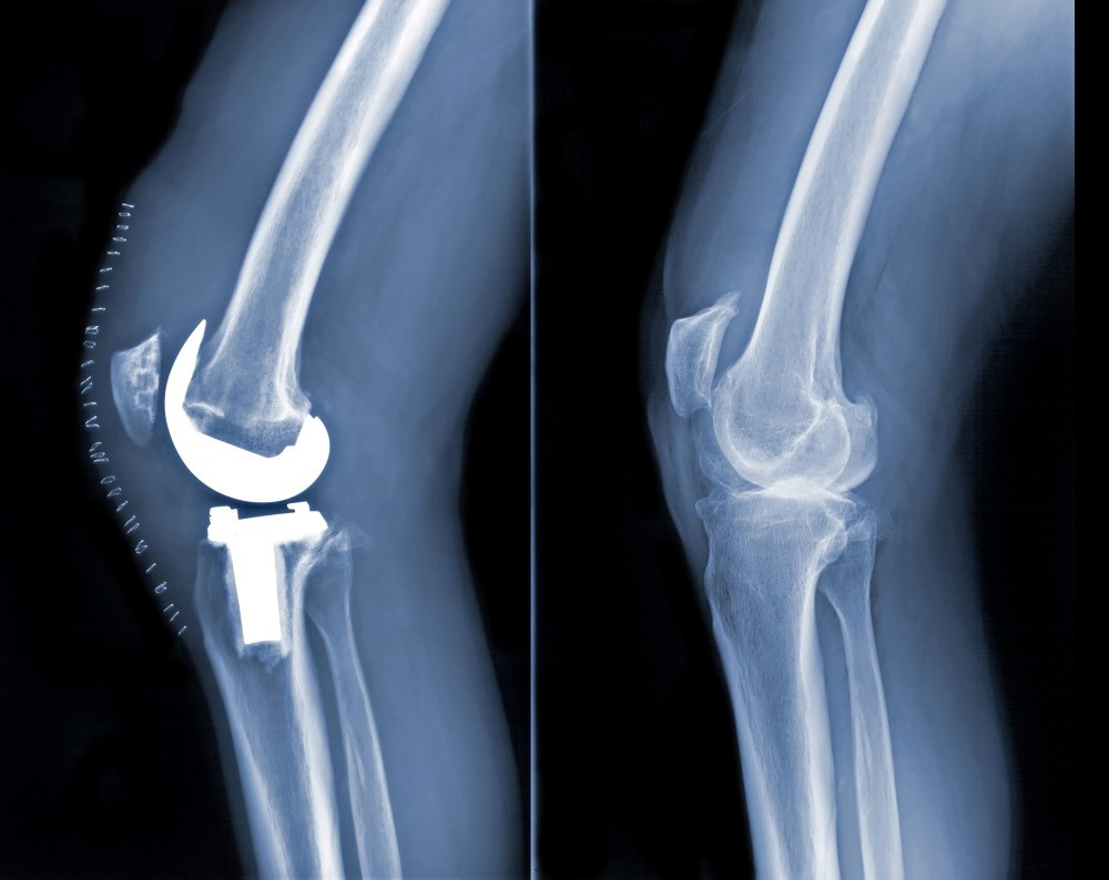 Total Knee Replacement for Osteoarthritis has Little Effect on Quality of Life