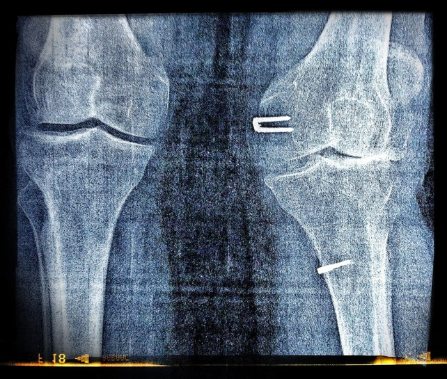 COX-2 Inhibitors Plus Metformin Lower Joint Replacement Rates in Osteoarthritis With T2D