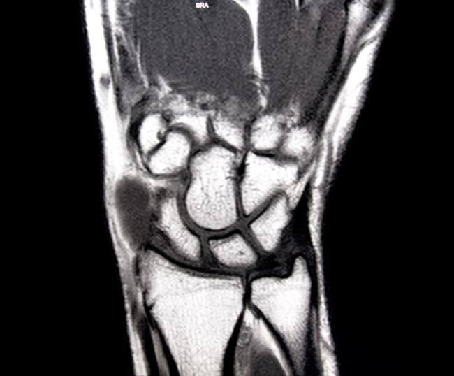 Rheumatoid Arthritis Disease Progression on MRI Despite Clinical Improvement