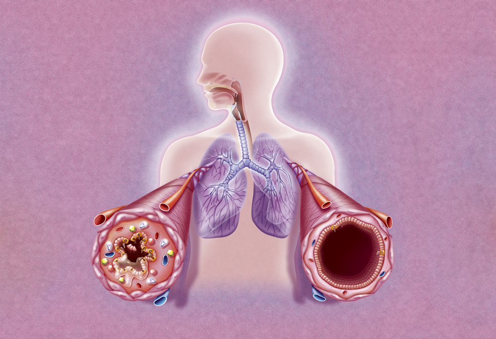 Environmental factors, including smoking, might increase the risk of both asthma and RA. Image credit: BSIP/Science Source