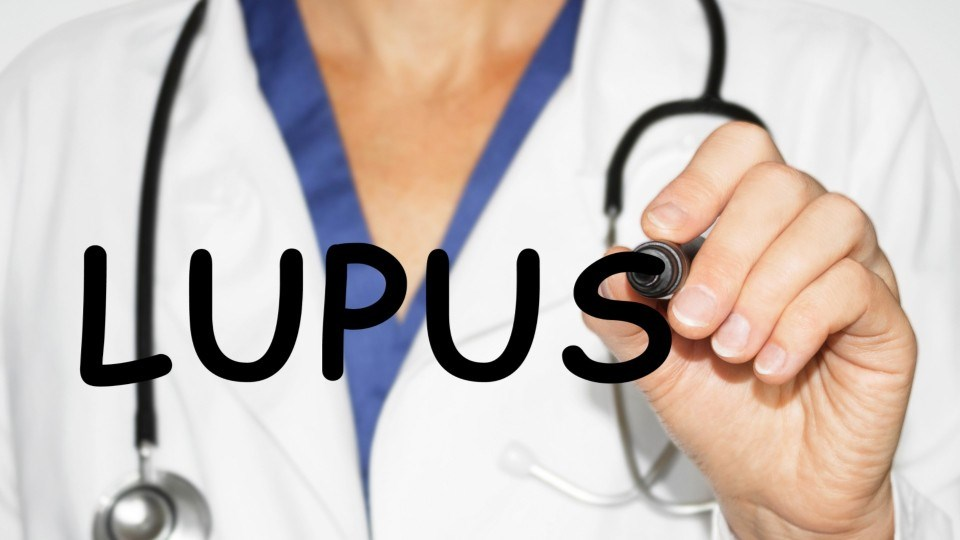 Kidney Transplantation Increases Survival in Lupus Nephritis Cases