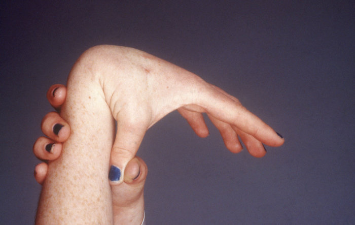 Understanding the Natural History of Ehlers-Danlos Syndrome ...
