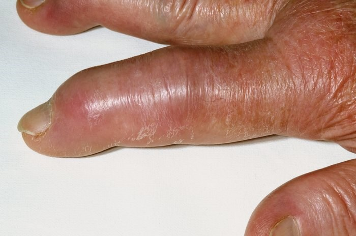Lesinurad Plus Febuxostat Effective for Tophaceous Gout