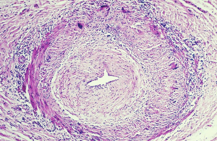 Survival Predictors Identified in Patients With Biopsy-Proven Giant Cell Arteritis