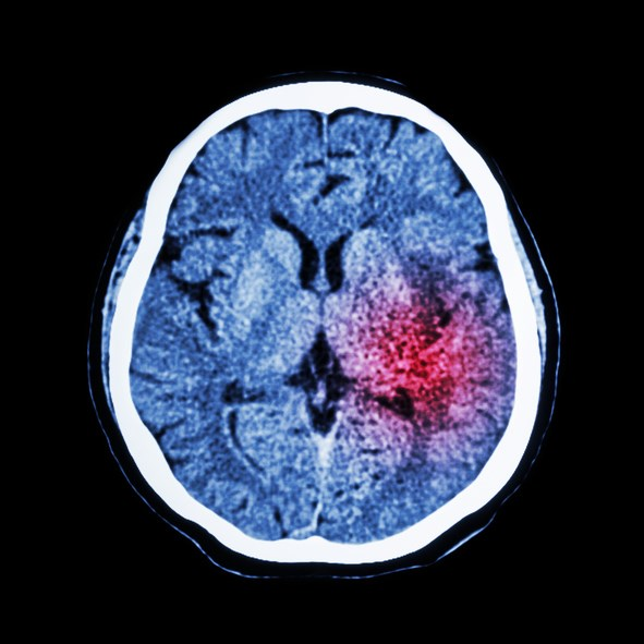 Anemia in Dialysis Patients Linked With Hemorrhagic Stroke