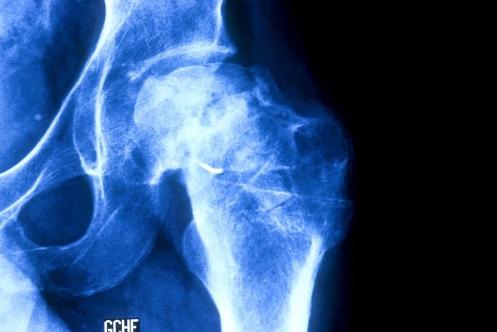 Osteonecrosis was the most frequent damage in patients with lupus. Photo credit: BSIP