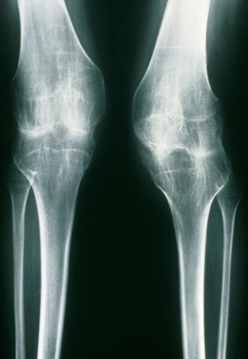 Angiopoetin-2 (ANG-2) may be an important marker of juvenile idiopathic arthritis (JIA). Photo credit: Princess Margaret Rose Orthopaedic Hospital / Science Source
