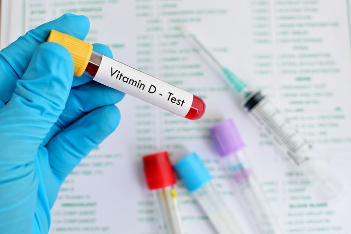 Cardiovascular Risks in JIA Linked to Serum Vitamin D Level