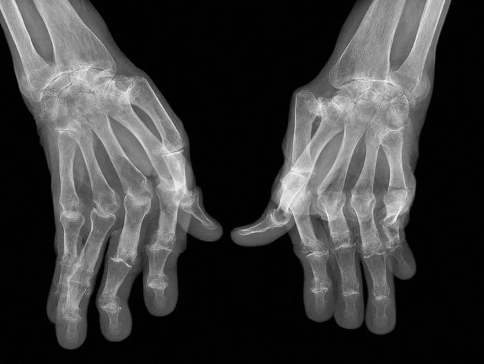 Cases and controls were examined to determine the relationship between occupational exposure to noxious fumes and rheumatoid arthritis. <i>Image credit: Science Source</i>