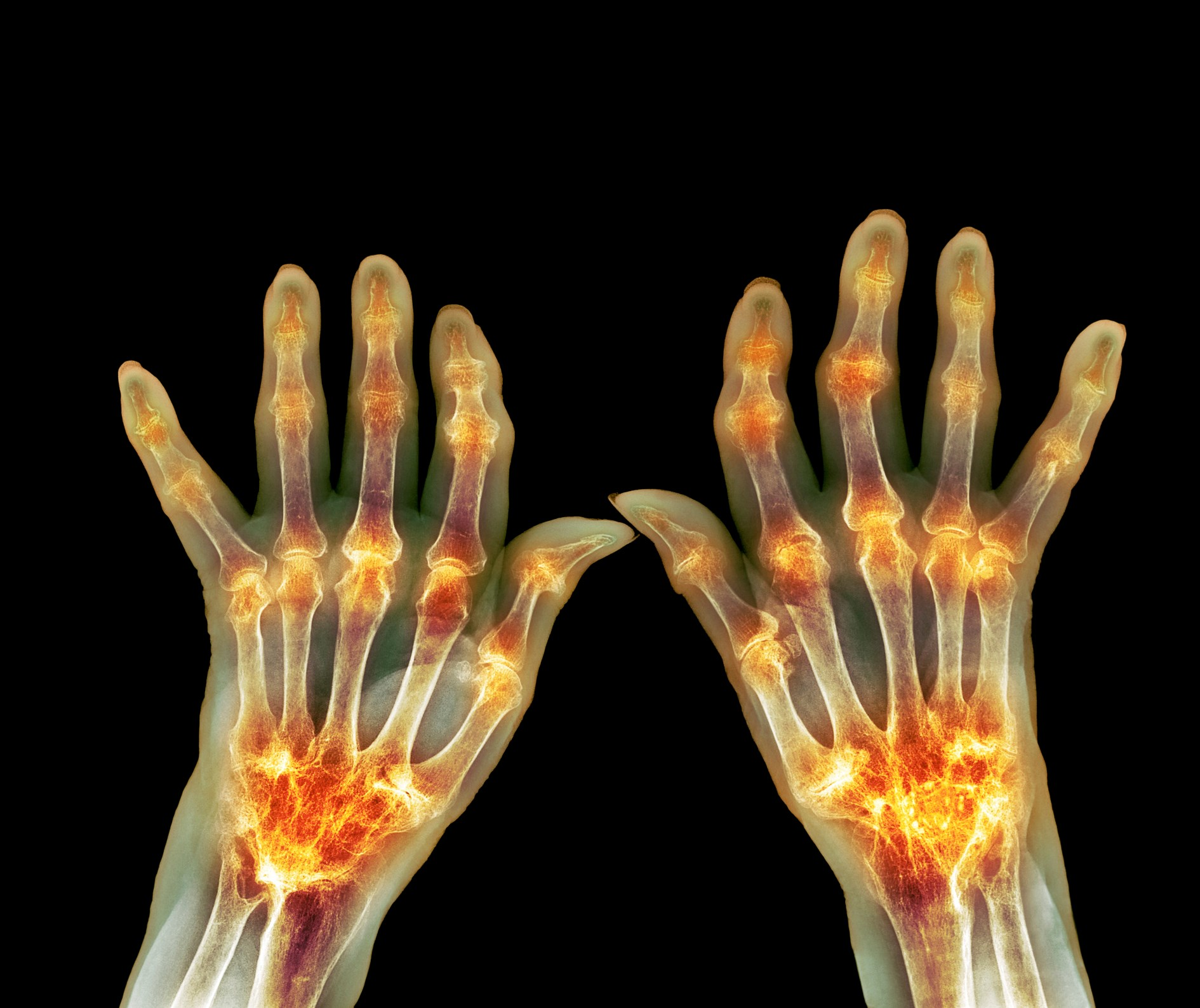 Rheumatoid arthritis has several cardiac manifestations.