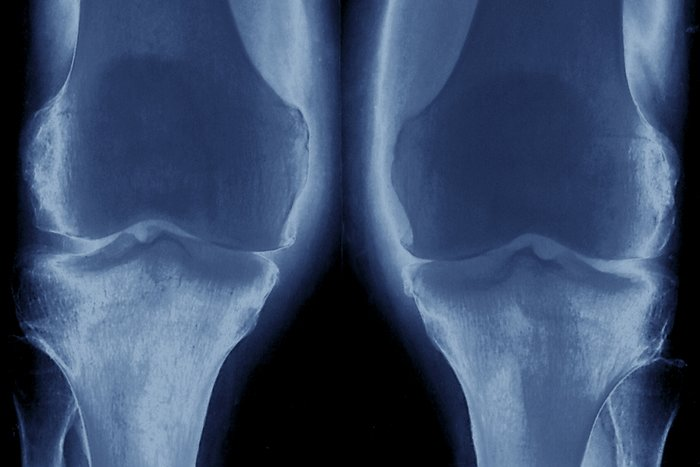 treatment and interventions for osteoarthritis Pre-operative interventions (non-surgical and non-pharmacological) for patients with hip or knee osteoarthritis awaiting joint replacement surgery – a.