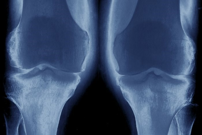 Risk for Knee Osteoarthritis in Adolescent Men Predicted in Modified Nottingham Model