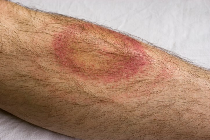 Adverse Effects Linked to Chronic Lyme Disease Treatments