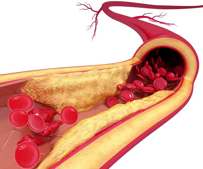 Predictors Of Accelerated Atherosclerosis In