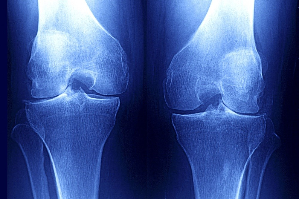 Online Risk Calculator Proves Beneficial in Estimating Risks for Knee OA