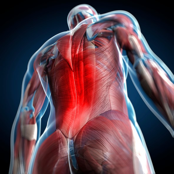'Choosing Wisely' Linked to Small Reduction in Imaging for Back Pain