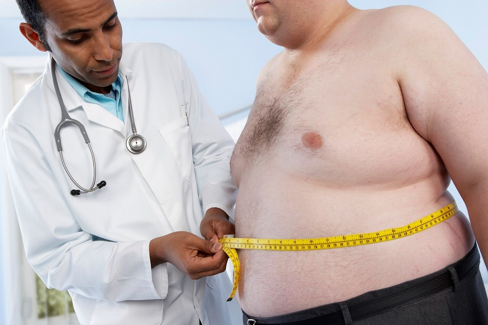 Obesity, Metabolic Syndrome Increases Risk for PCa Recurrence