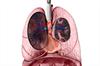 Assessment of Life Expectancy in Scleroderma-Associated Pulmonary Arterial Hypertension