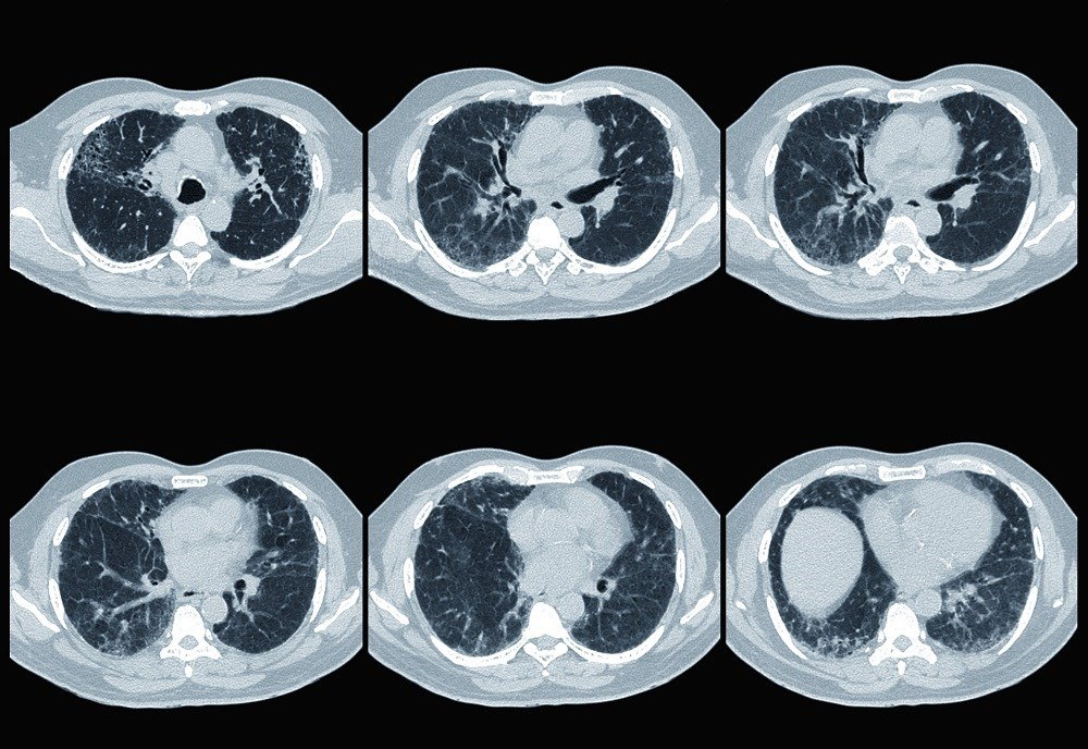 Pulmonary and thoracic symptoms often coincide with the initial presentation of connective tissue diseases, although some appear years before clinical manifestations arise.