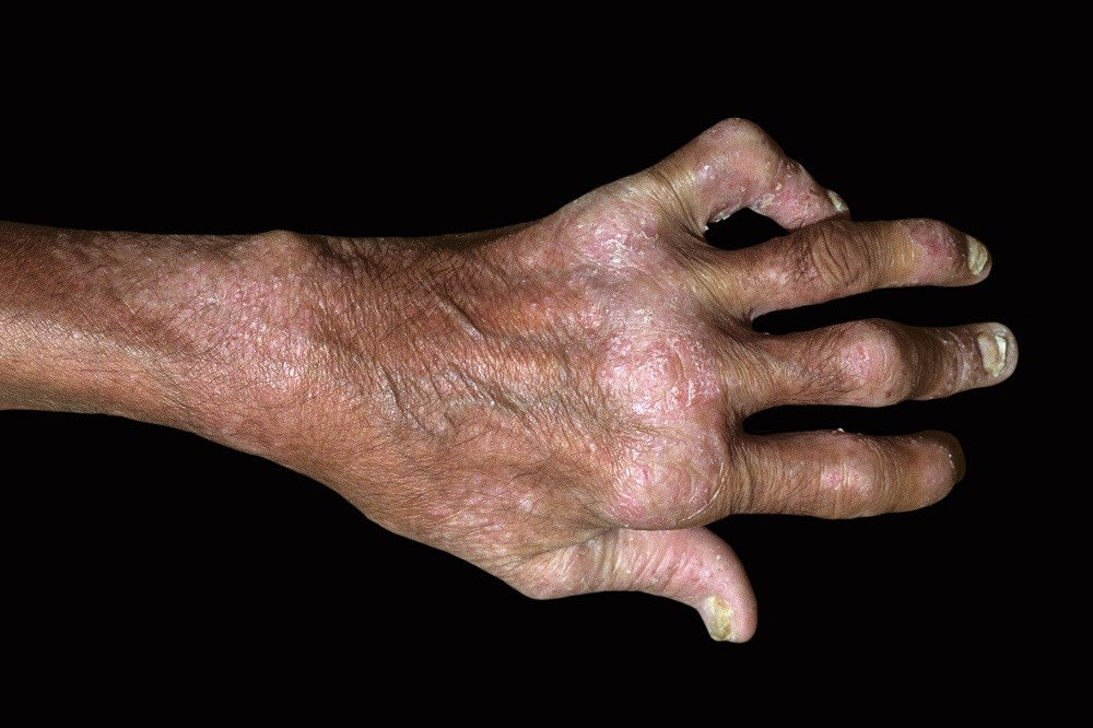 Examining the Influence of Disease Manifestations on Quality of Life in Psoriatic Arthritis