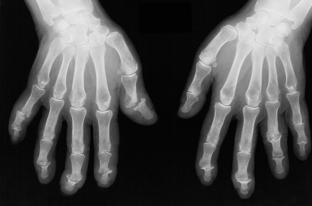 Comparing Physician and Patient Reports of Psoriatic Arthritis Remission