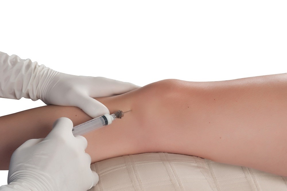 Extended-Release Steroidal Injectable Suspension Available for Knee OA