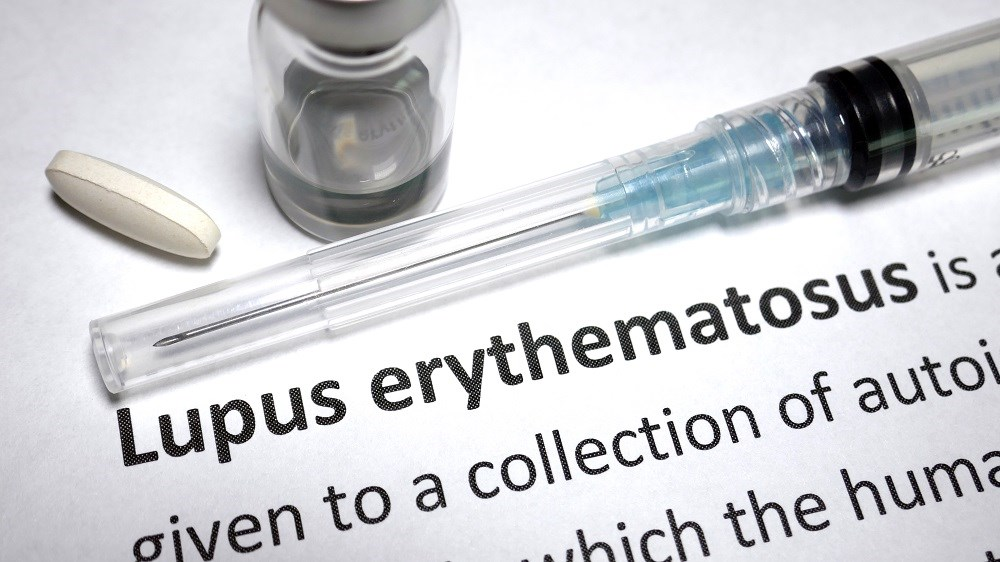 Baricitinib Gets Fast Track Status for Systemic Lupus Erythematosus