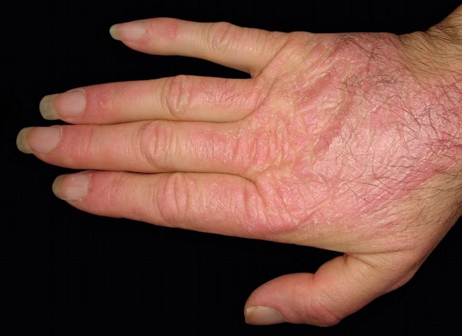 CDASI Predicts Cutaneous Dermatomyositis Disease Course and Progression