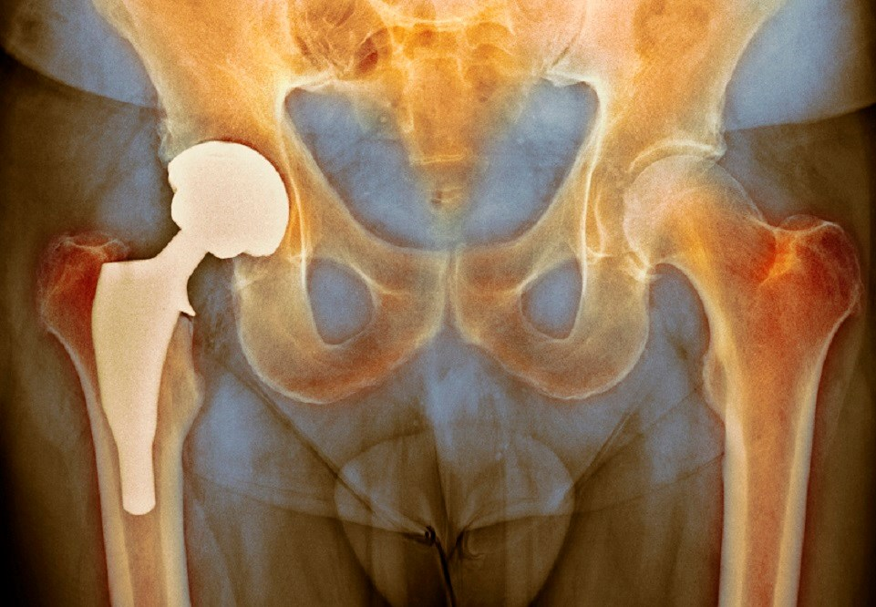 Clinical Comorbidities Up After Arthroscopic Hip Surgery