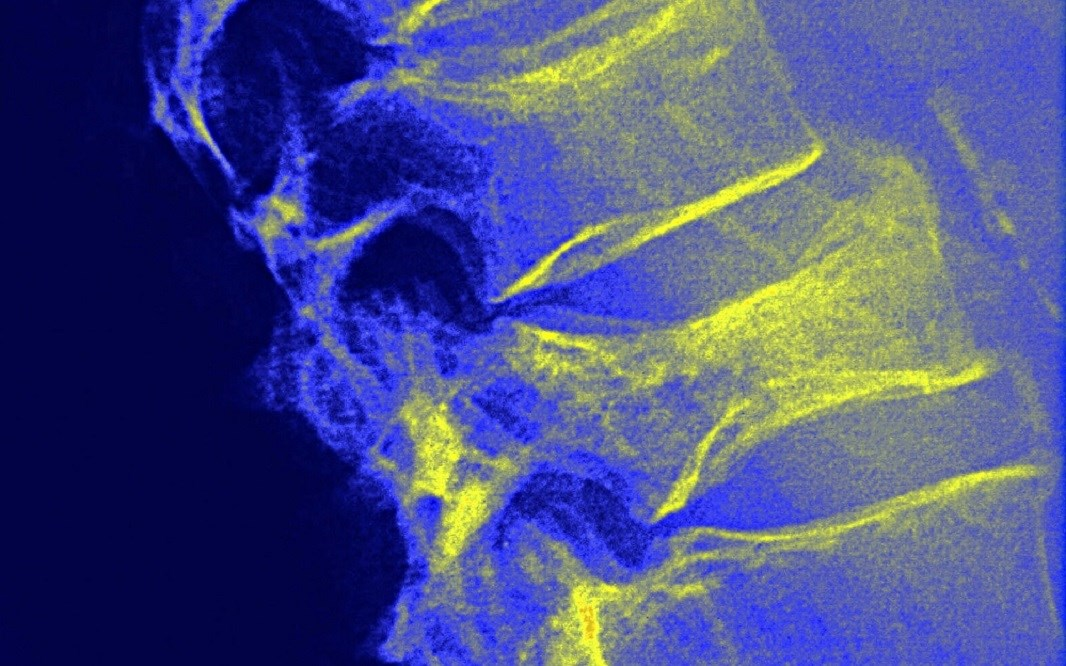 Osteoporotic Fracture Risk Predicted by Vertebral Trabecular Attenuation on Routine CT