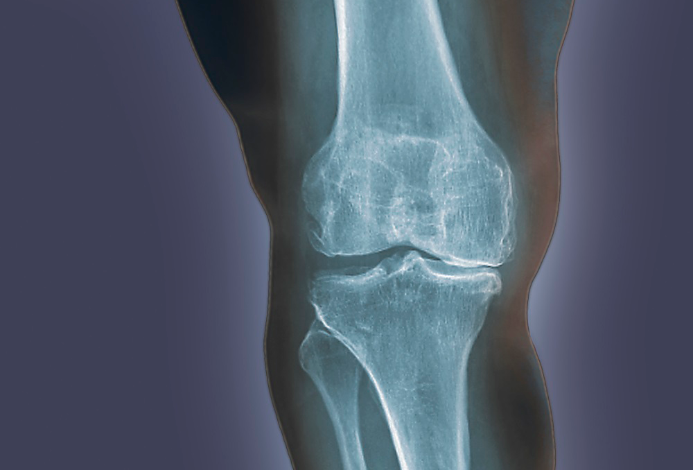 Knee Pain in Osteoarthritis Associated With Long-Term Prefrailty, Frailty