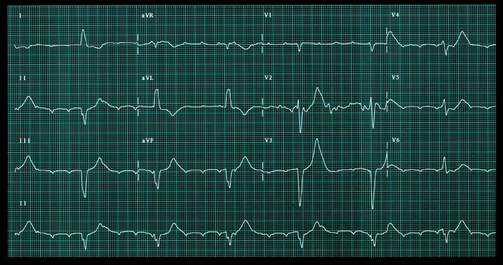 A complete congenital heart block is the most serious manifestation of NSLES and is irreversible.