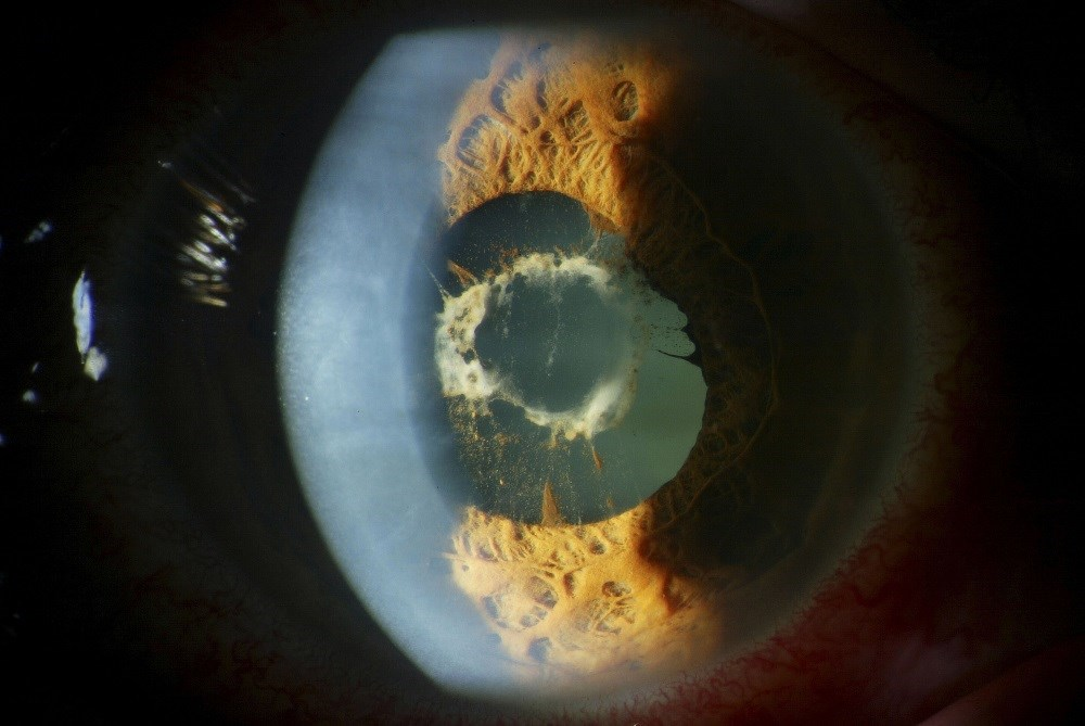 Independent predictors for uveitis included younger age at JIA diagnosis and positive ANA test. <i>Credit: ISM / BARRAQUER, Barcelona</i>