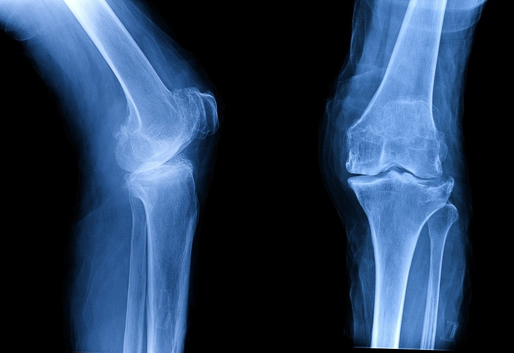Examining the Effectiveness of Bisphosphonates for Knee Osteoarthritis